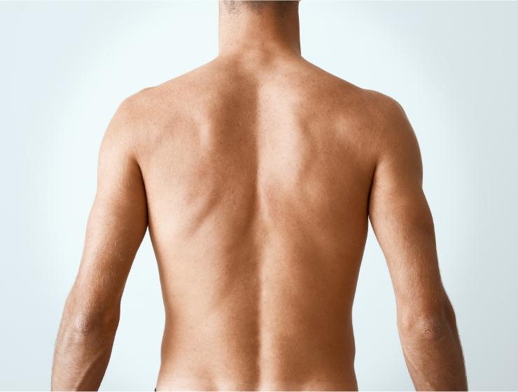chianciano-analisi-posturale